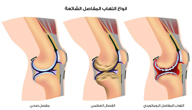 صورة علاج التهاب العضلات والاعصاب بالاعشاب