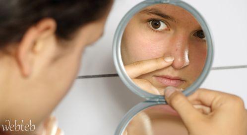 صورة البشرة الدهنية وعلاجها