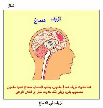 صورة ما هو نزيف الدماغ