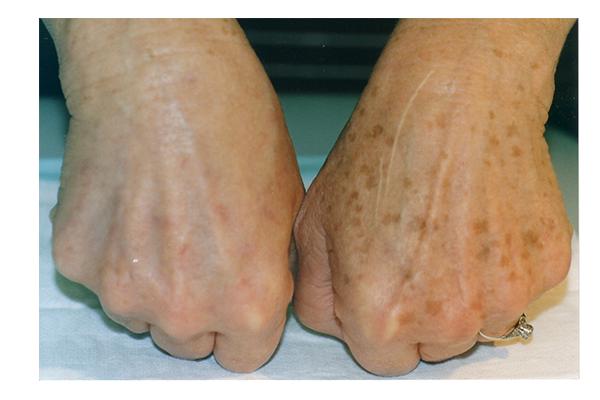 صورة علاج البقع على اليدين