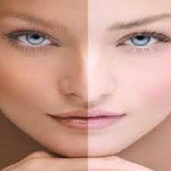 صور وصفات لتصفية الوجه من البقع الداكنة