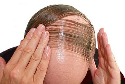 صورة وصفات لمنع تساقط الشعر