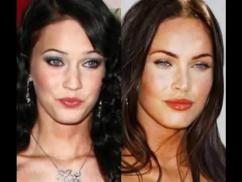 صور فنانات قبل وبعد عمليات التجميل