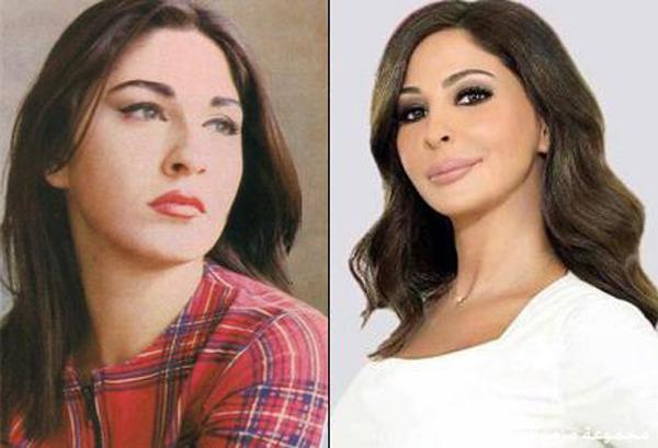 صور الفنانين قبل وبعد عمليات التجميل